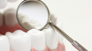 dental-sealants