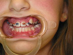 top braces on a child.