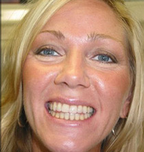 cosmetic braces after