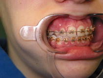 braces on a young girl