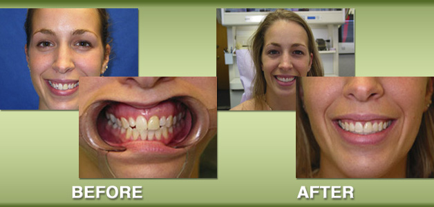 Orthodontics and costmetic restorative procedures before and after