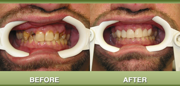 Composite restorations and root canal therapy before and after