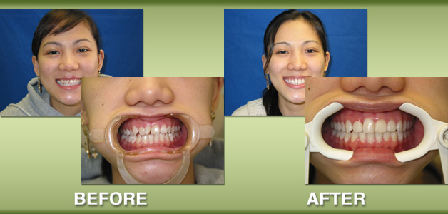 Diem braces before and after