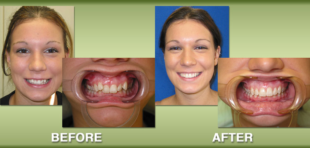 Rebecca's braces before and after